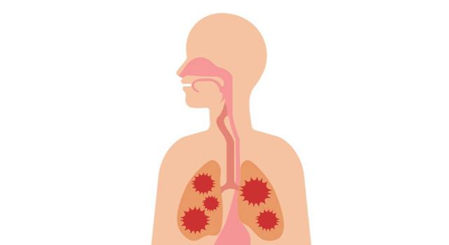 誤嚥性肺炎の予防法